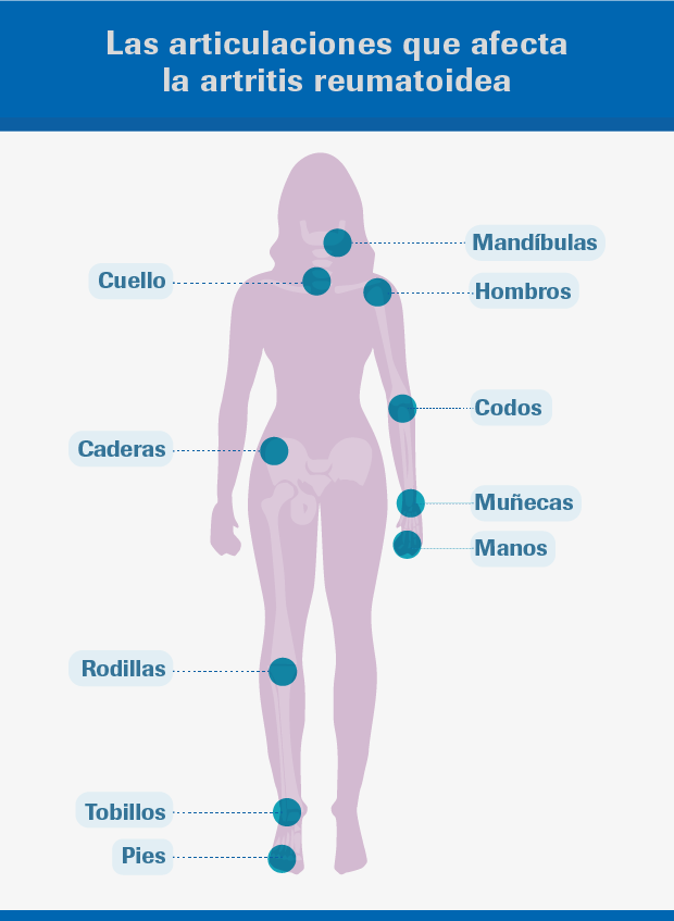 sintomas+de+la+artritis+de+rodilla